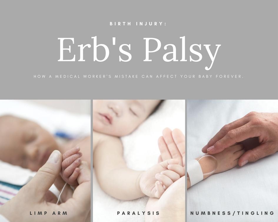 Birth Injury   Erb's Palsy Attorneys